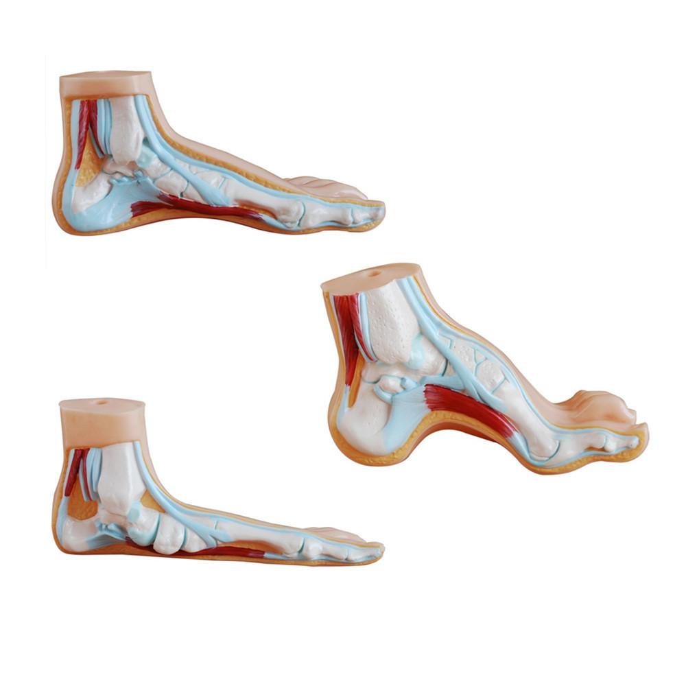 2794c4426aa Miks on vaja ortopeedilisi sisetaldu?   fysioapteek
